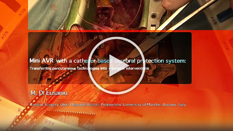 https://www.minicardiacsurgery-univpm-research.com/wp-content/uploads/2021/03/11-MiniAVR-with-a-catheter-based.jpg