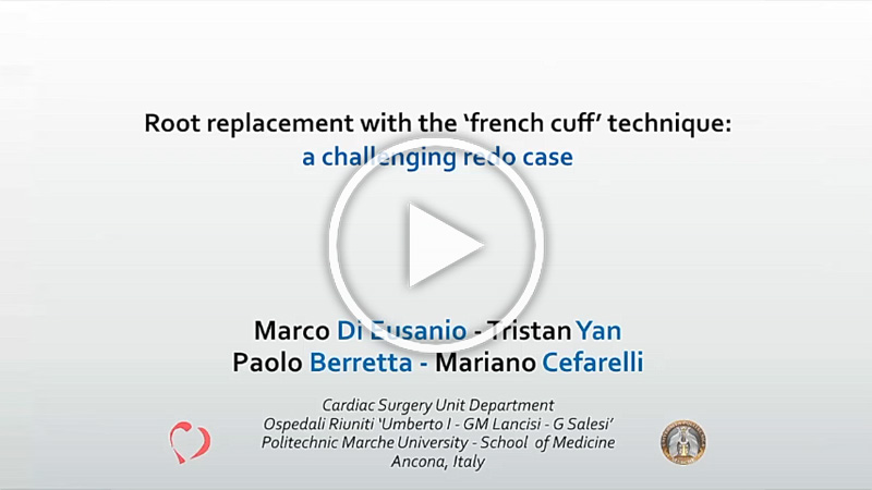 https://www.minicardiacsurgery-univpm-research.com/wp-content/uploads/2021/03/20-A-Redo-Bentall-procedure.jpg