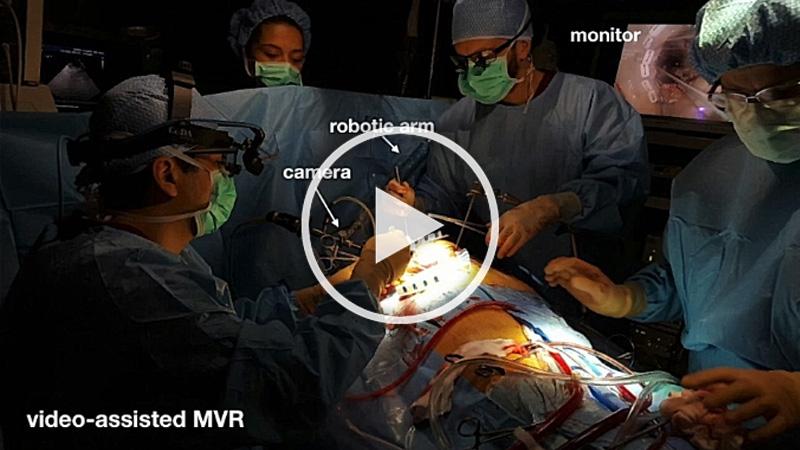 https://www.minicardiacsurgery-univpm-research.com/wp-content/uploads/2021/03/7-Trans-Axillary-Direct-Mitral-Valve-Repair.jpg