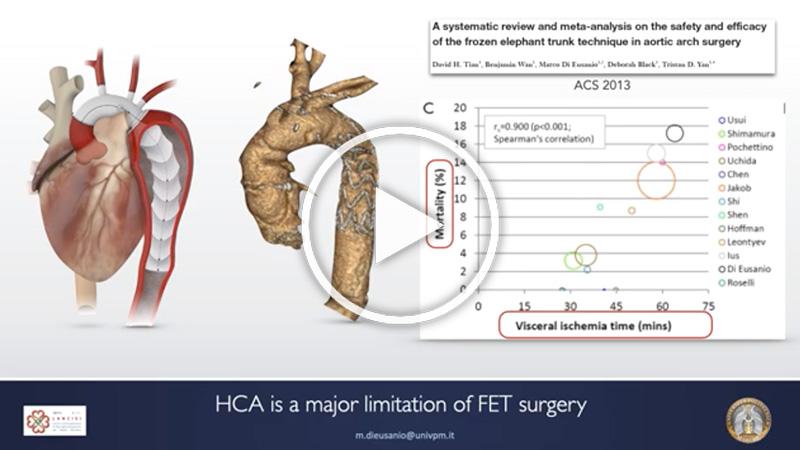 https://www.minicardiacsurgery-univpm-research.com/wp-content/uploads/2021/04/25-Frozen-Elephant-Trunk-Surgery-Without-Circulatory-Arrest.jpg