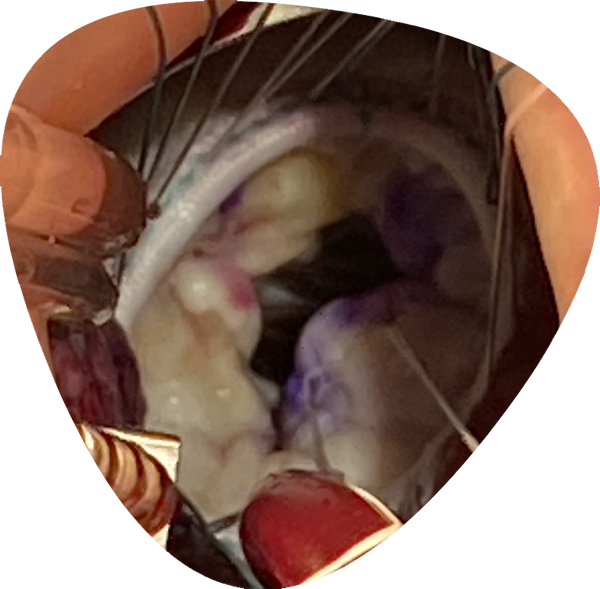 https://www.minicardiacsurgery-univpm-research.com/wp-content/uploads/2021/04/on-site-training-new2.png